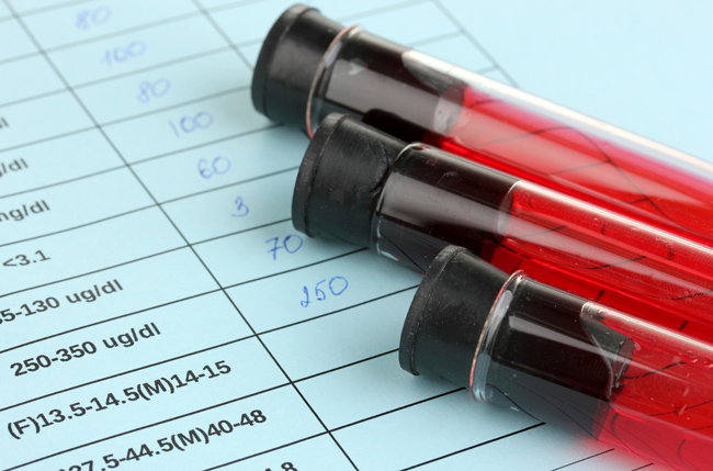 Blood Test Can't Detect Nutrition Deficiencies